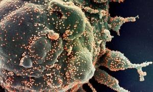 O ataque do coronavírus a uma célula humana. Foto: Nasa
